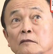 麻生太郎 瞬膜