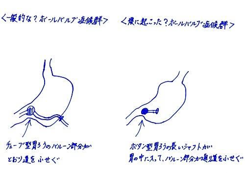 シロートのかいたボールバルブ症候群の図