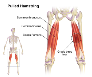 Pulled_Hamstring_2017050618020999b.png