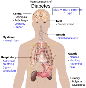 the-human-body-1279964_960_720.png