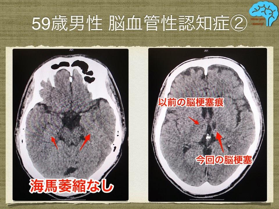 59歳男性20VaD改善例20レミニール_002