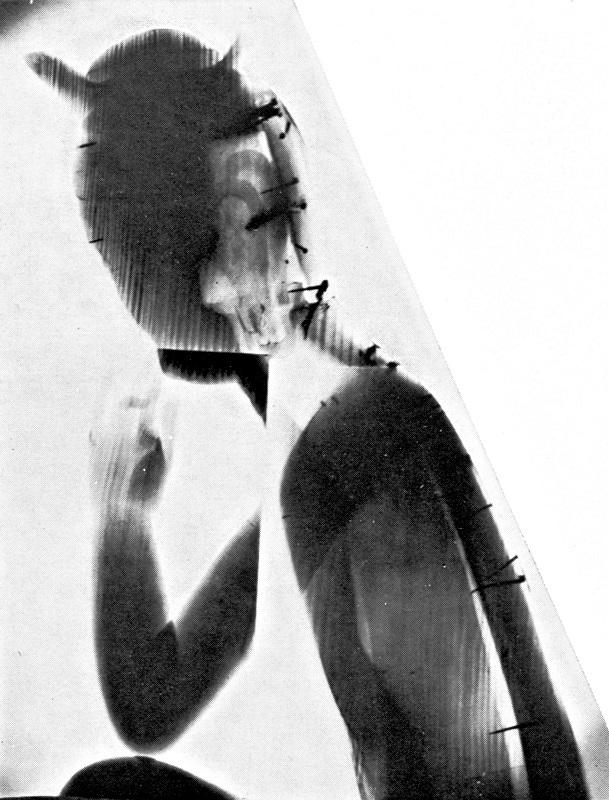 広隆寺・宝冠弥勒像のX線撮影写真(久野健著「古代朝鮮仏と飛鳥仏」所載)