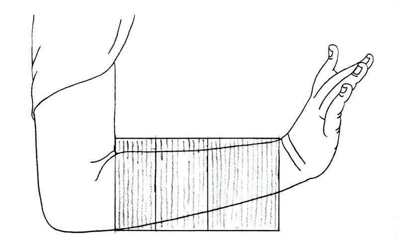 縦木材を数材用いた腕の矧ぎ付け方(新薬師寺・薬師像の矧ぎ付け)