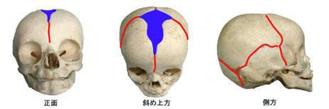 赤ちゃん頭蓋縫合