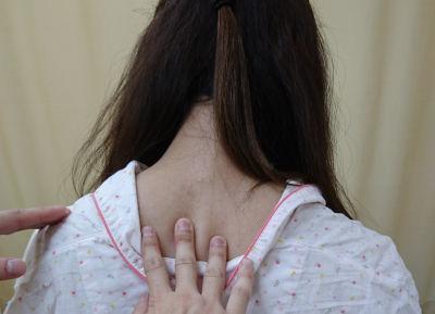 頚椎・女性