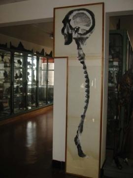 4パリ大学解剖博物館