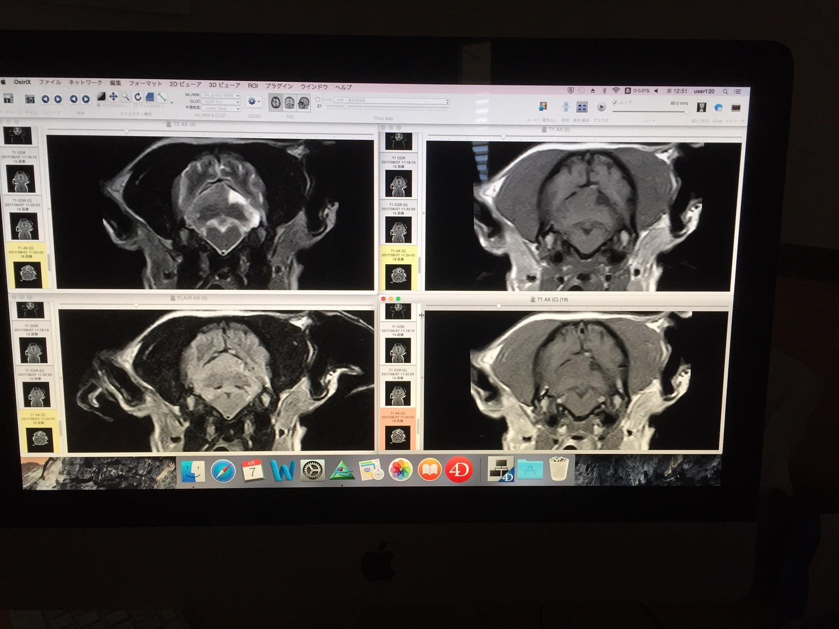 MRI5.jpg