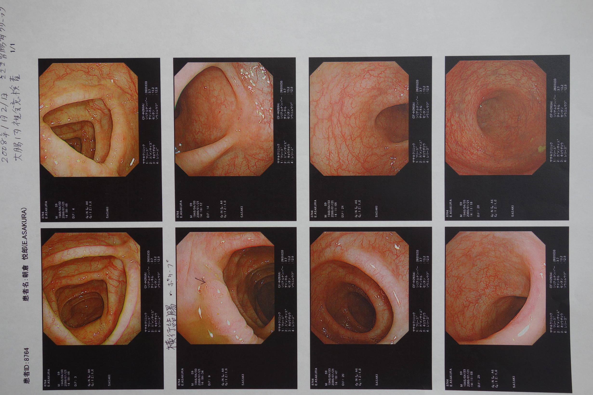 大腸20080121