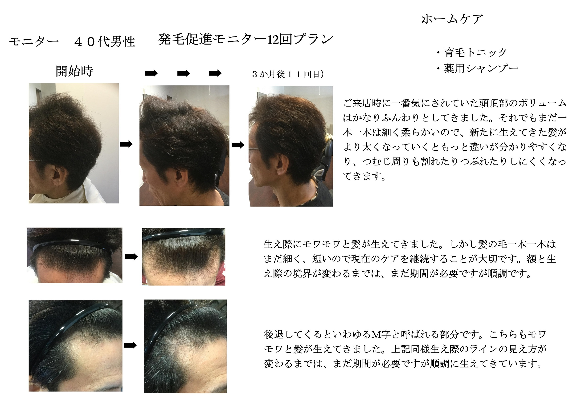 【発毛促進】スカルプモニター 40代男性