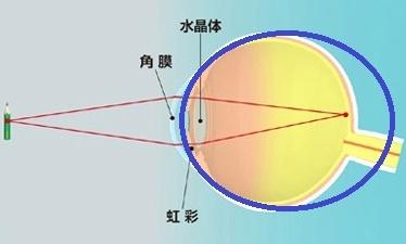 参天・角膜水晶体の不思議 ②近視