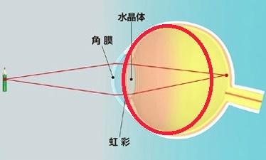 参天・角膜水晶体の不思議 ③遠視