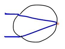 屈折の状態 (3)
