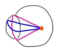 屈折の状態近視