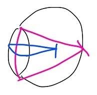 屈折・乱視 (1)