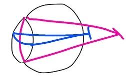 屈折・乱視 (2)