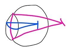 屈折・乱視 (3)