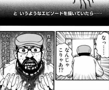 後遺症ラジオ5巻 作者 中山昌亮の奇病1